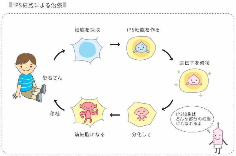 iPS細胞による治療の説明図